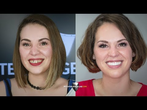How a Single Mom Changed her Life in One Hour with Smile Makeover - Brighter Image Lab.com