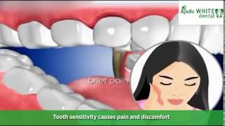Do you suffer from sensitive teeth? Ask to Dental Experts Solution for It.