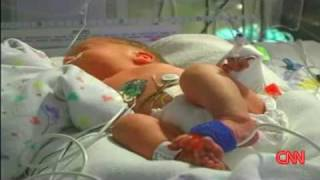 Woman With 2 Wombs Gives Birth To 2 ! | Double Dose of Uterus