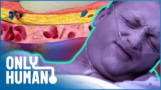 Flesh Eating Bacteria Almost Killed This Father | Amazing Medical Stories | Only Human