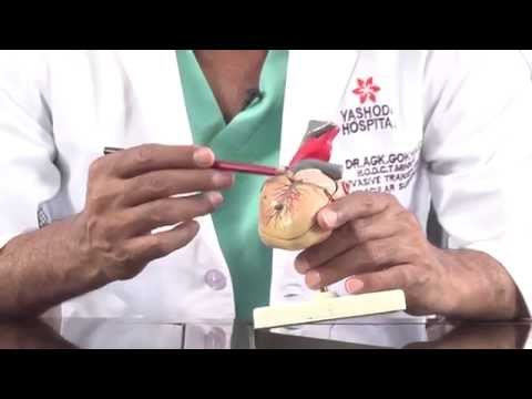 Patient Education On CABG Heart Surgery Video - Telugu Version koroner arter BYPASS Kalp Ameliyatı