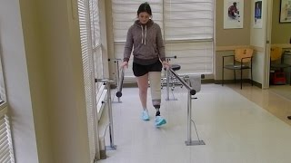 First Time Walking with Prosthetic Leg!