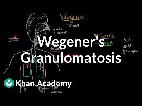 Wegener's granulomatosis and microscopic polyangiitis | NCLEX-RN | Khan Academy