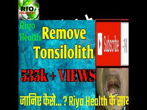 Tonsil stones(Tonsillolith) Removal Dr.s hakir