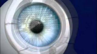 Intralase Educational Video | Laser Eye Surgery