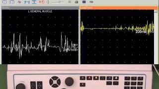 22. UltraPro Score Needle EMG Findings