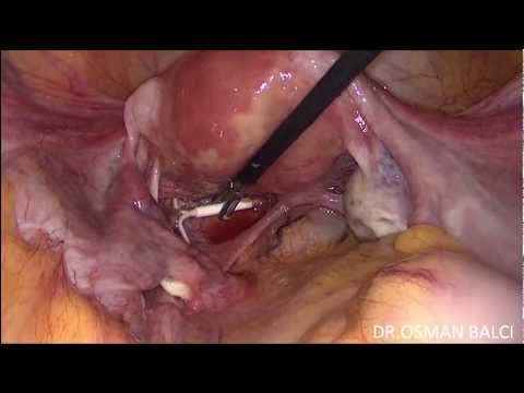 Laparoscopic Removal Of Intra Abdominal IUD Using One Ancillary Trocar