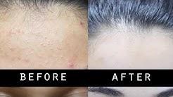 hqdefault - Remove Small Pimples Face