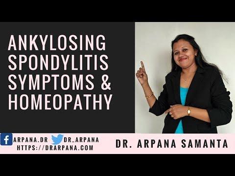 Ankylosing Spondylitis क्या है, इसके लक्षण, और दवाई || Ankylosing Spondylitis Symptoms & Homeopathy