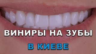 Все о Винирах для зубов ультра тонких в Киеве - установка