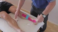 How to treat Shin Splints (Medial tibial stress Syndrome / Periostitis) with Kinesiology tape