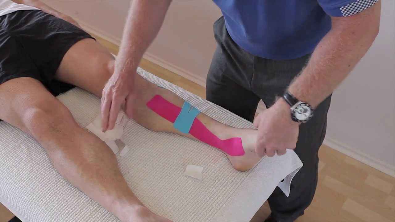 How To Treat Shin Splints Medial Tibial Stress Syndrome Periostitis With Kinesiology Tape Youtube