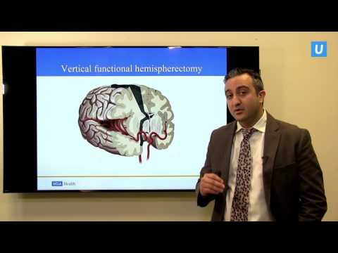Hemispherectomy: When half the brain is better than the whole | UCLAMDCHAT Webinars