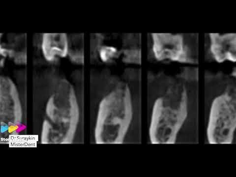 Немного имплантации , имплантация зубов, лечение зубов , протезирование зубов