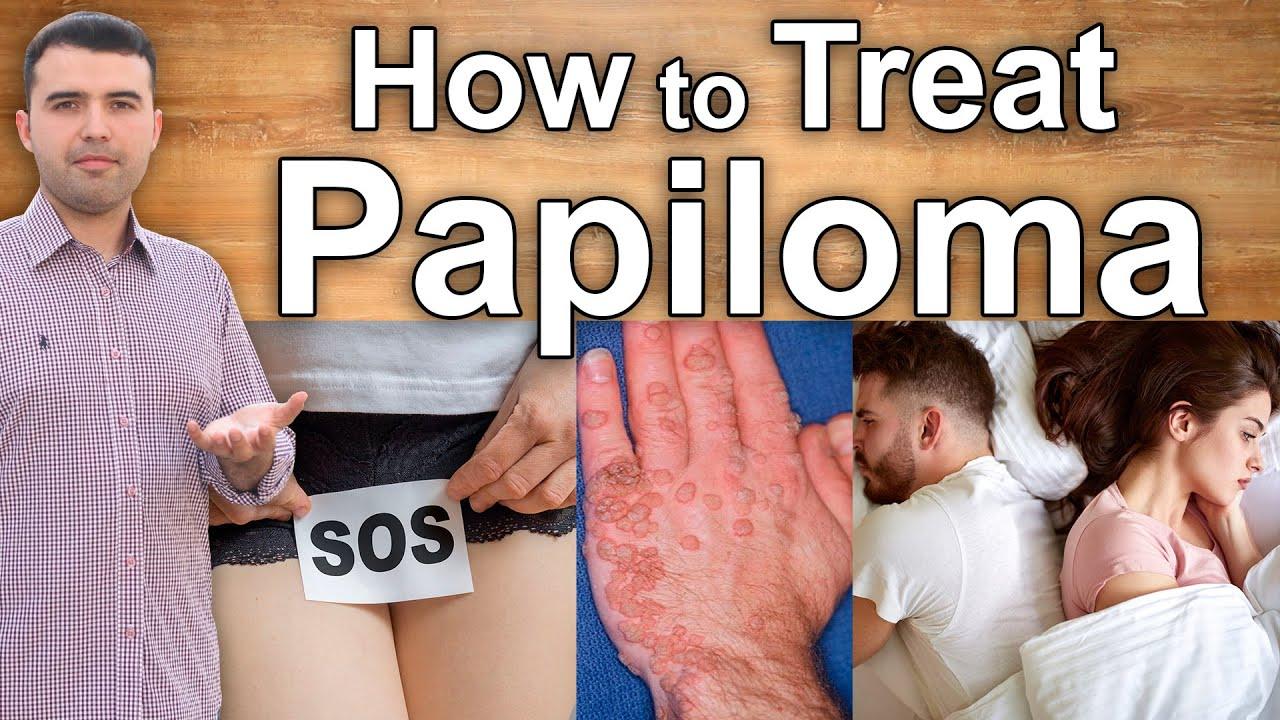 how to treat human papillomavirus infection naturally