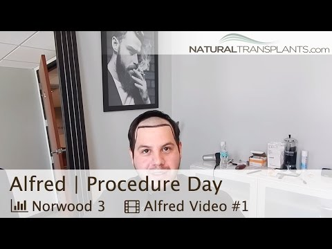 Hair Growth Treatment | Hair Loss Cure Florida | Surgery Day Overview (Alfred)