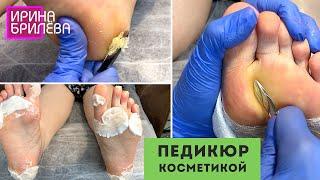 ХОРОШИЙ РЕЗУЛЬТАТ с косметикой в педикюре 🌸 ПРЕПАРАТНЫЙ ПЕДИКЮР 🌸 Ирина Брилёва