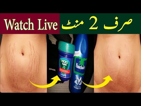 Apply Vicks Vaporub to Remove Stretch Marks in 2 Minutes - 100% Effective