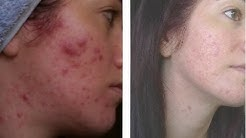 hqdefault - Exposed Skin Care Acne Scars
