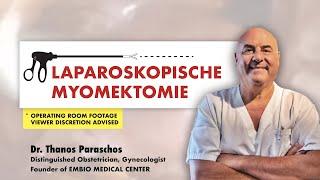 ✅ Laparoskopische Myomektomie