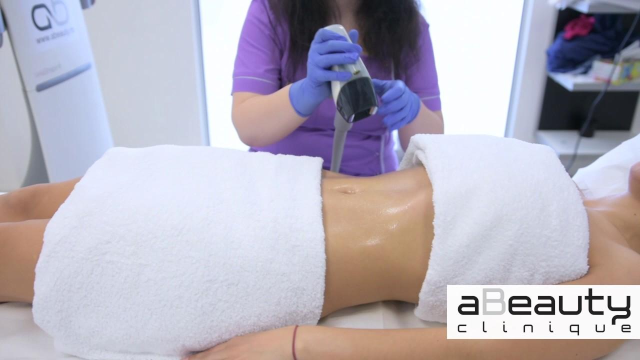 Slăbire în jurul abdomenului cu folie alimentară. Cum se face corect - mymamaluvs.com
