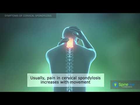 Cervical Spondylosis. Symptoms