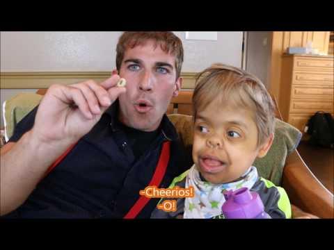 The Miracle Mann (Thanatophoric Dysplasia Dwarfism)
