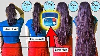 हफ्ते में सिर्फ 1 दिन लगा लो बाल इतने ज्यादा लम्बे हो गए की संभालने में नहीं आये | Super Hair Growth