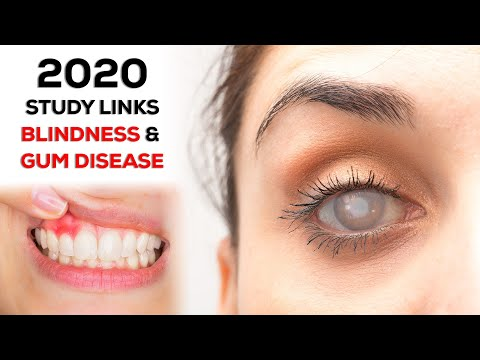 Blindness Linked to Gum Disease (2020 Study)