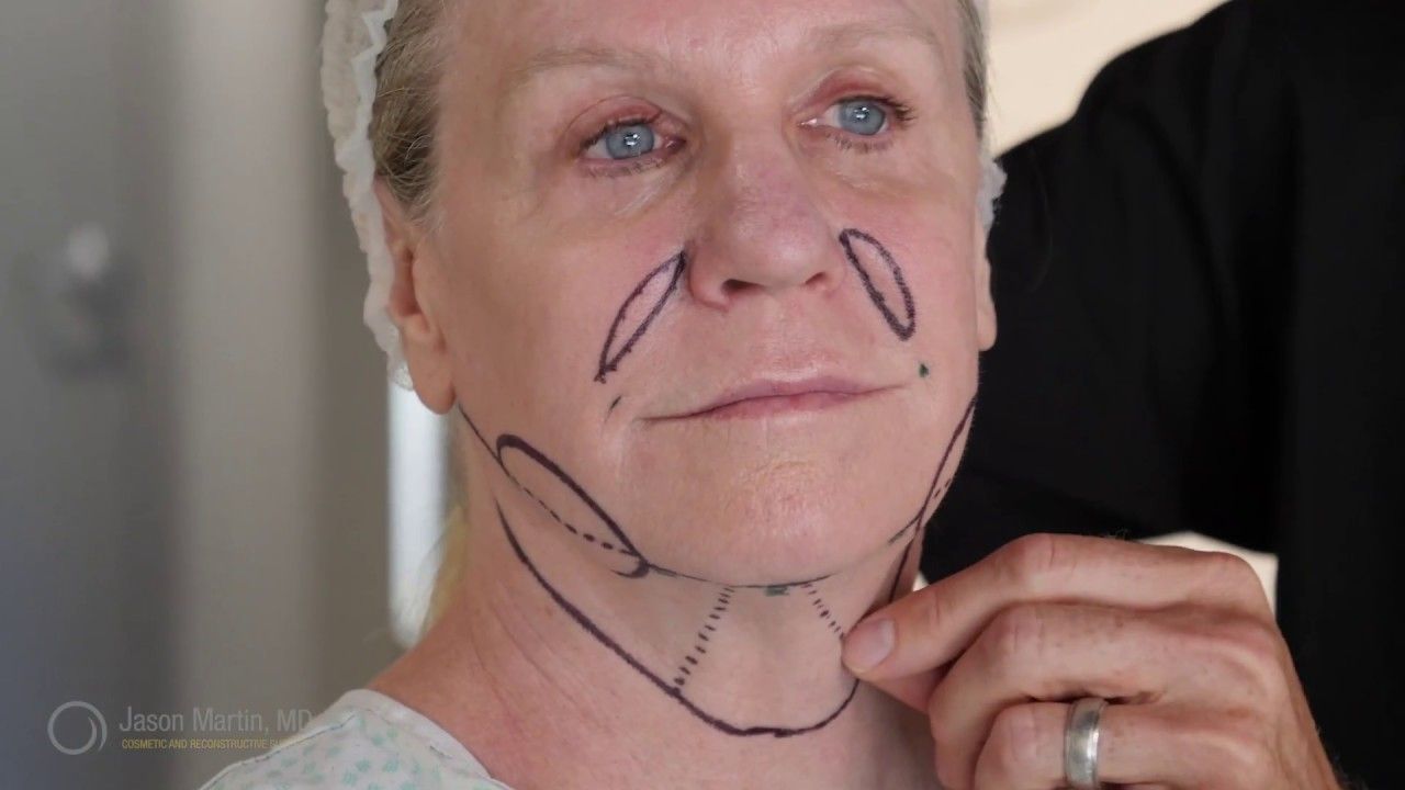 How To Reduce Swelling After Facetite