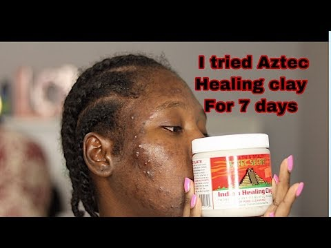 I AM SHOOK \\ I TRIED AZTEC HEALING CLAY ON MY ACNE FOR 7 DAYS