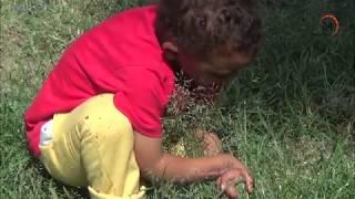 يوسف.. طفل الاسماعيلية بترت أصابعه في حادث ويحتاج إلى عملية زرع أوتار بعد تفتت عظامه