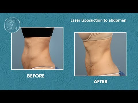 laser-liposuction-fat-removal-and-skin-tightening-on-abdomen-san-diego