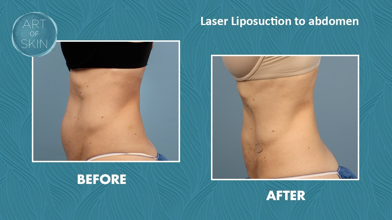 Laser Liposuction Fat Removal And Skin Tightening On Abdomen San Diego Youtube