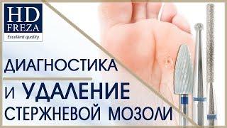 Мастер-класс по диагностике и удалению мозоли на ногах // HD Freza®