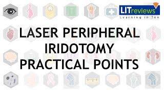 Laser Peripheral Iridotomy Practical Point