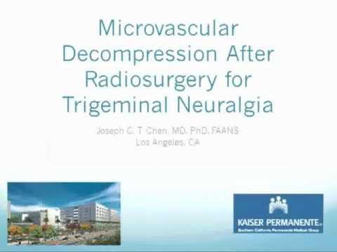 Microvascular Decompression Surgery For Trigeminal Neuralgia.