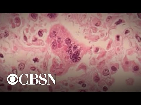 U.S. measles cases reach record levels