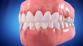 Straight Talk Video Invisalign Brickell Dentist Dr Jaskiel
