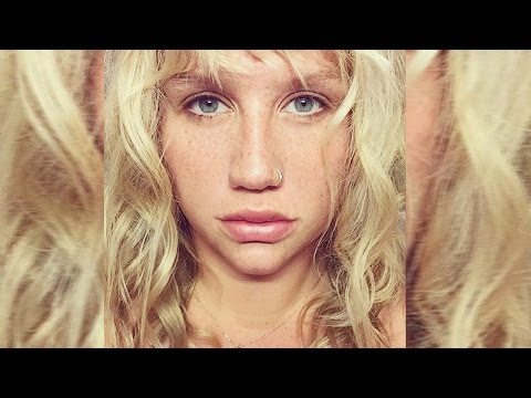 Kesha DROPS Dr. Luke Lawsuit For THIS Reason Mp3