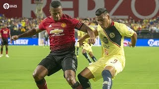 Martial Knock! Manchester United 1-1 Club America