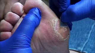 World's Biggest Callus? Absolutely Huge!