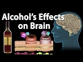 Effects of Alcohol on the Brain, Animation, Professional version.