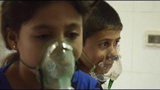 اختناقات بقصف بغاز الكلور في حي السكري بحلب