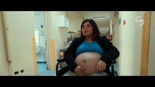 Embarazo abdominal: Guagua se está desarrollando fuera del útero - CHV Noticias