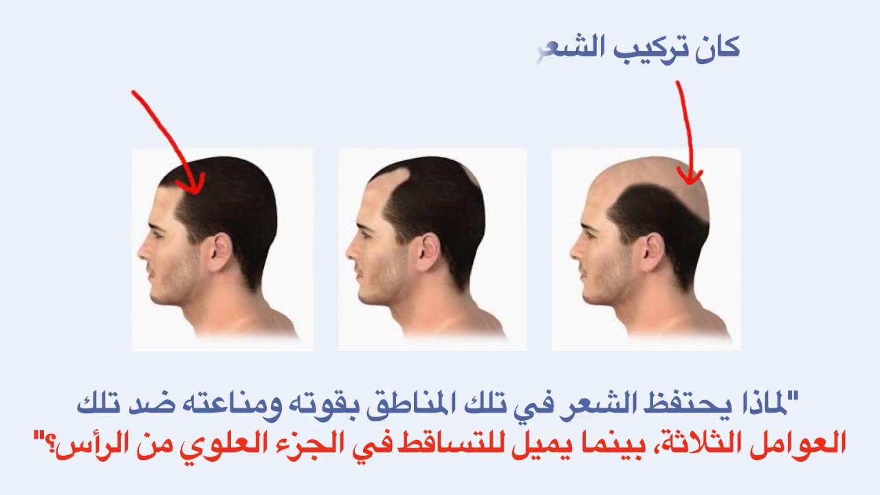 علاج طبيعي جديد لتساقط الشعر /  حل تساقط الشعر للرجال والنساء