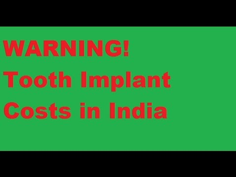 Dental Implant Costs in India - Tooth Implant Prices WARNING