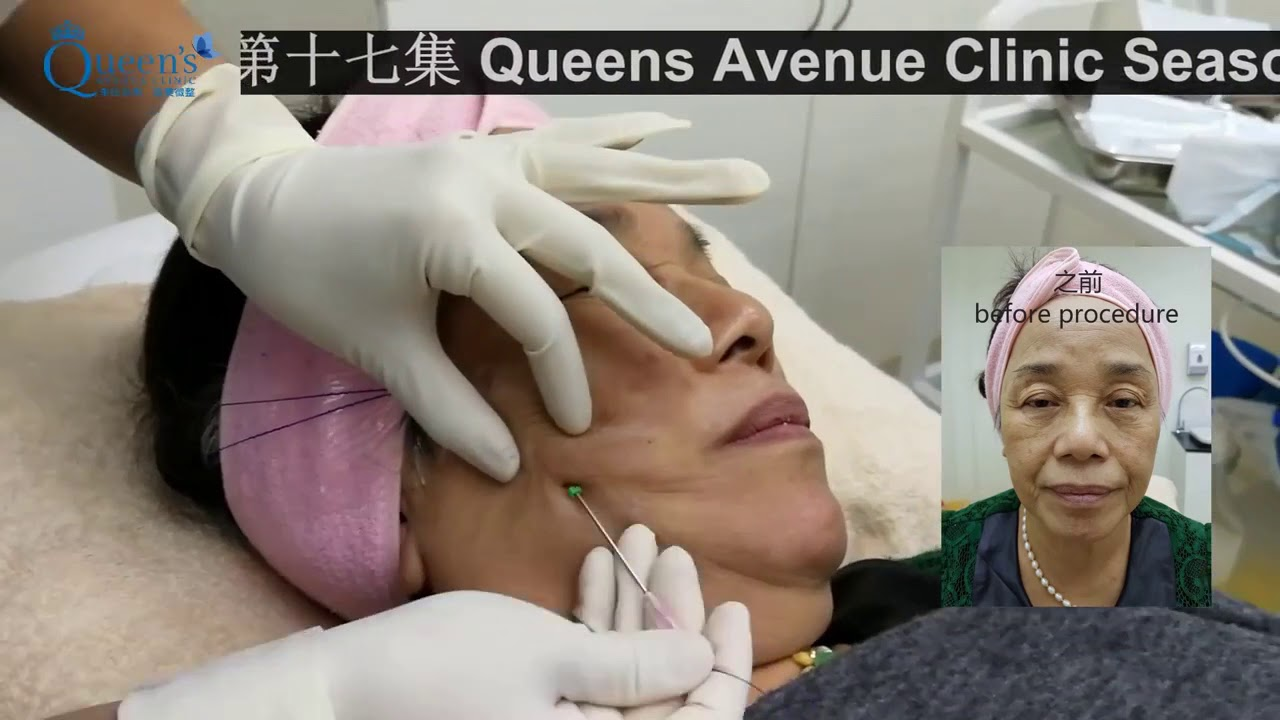 Queen's Signature V-Lift | Best Aesthetic Clinic in Malaysia