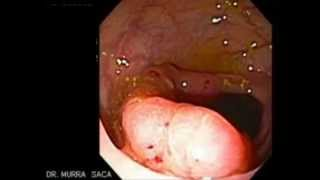 Colonoscopia con un Cáncer del Colon Trasverso