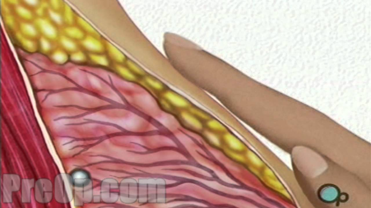 Breast Biopsy Incisional Surgery PreOp Patient Education